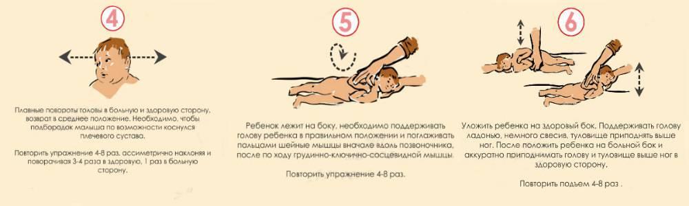 Люмбоишалгия