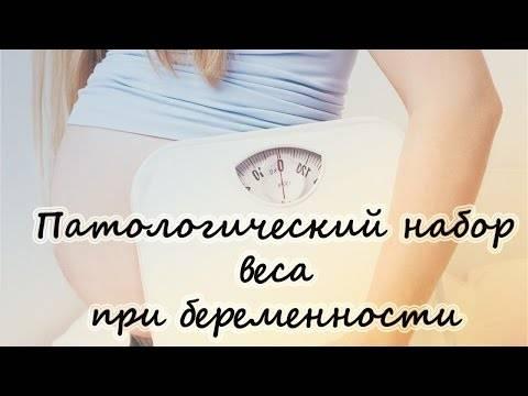 Вес при беременности и отеки при беременности