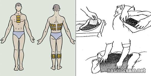 Острая боль в спине - что делать, как снять болевой синдром, куда обращаться