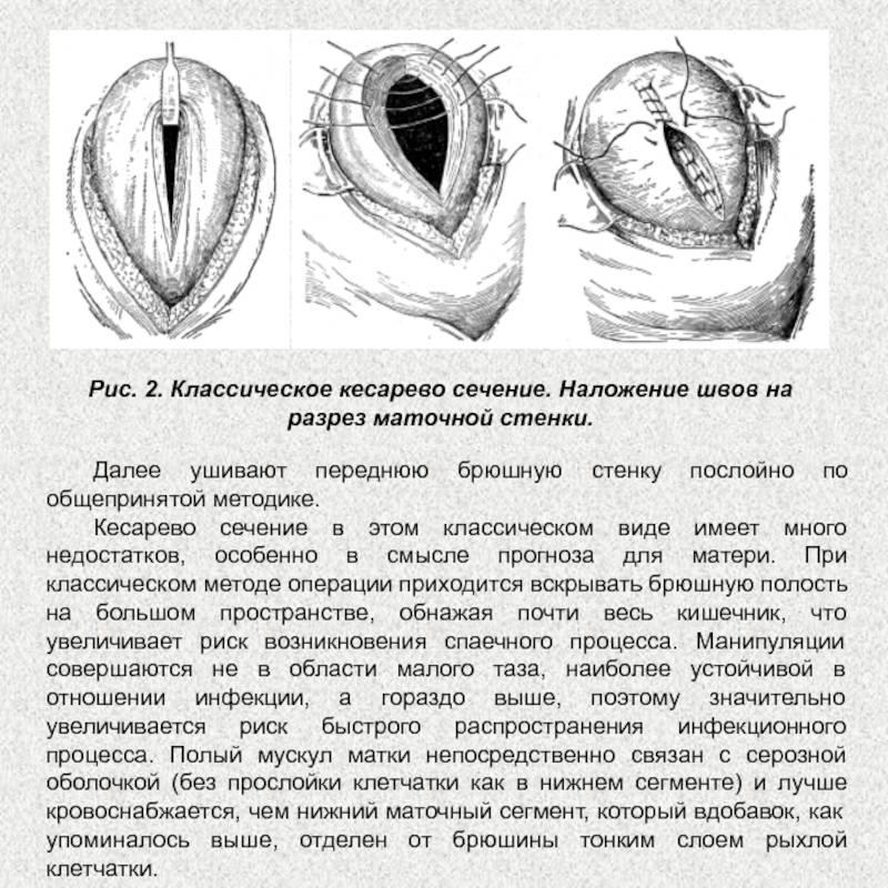 История операции кесарева сечения в россии. почему кесарево сечение называется кесаревым