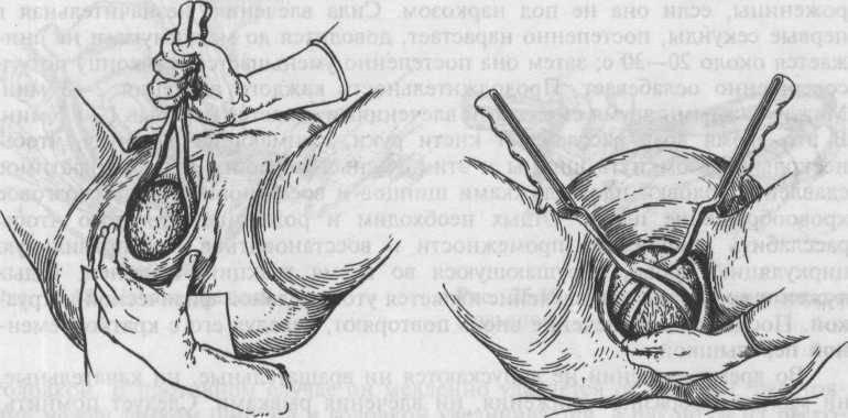 Эпизиотомия и перинеотомия при родах (рассечение промежности)