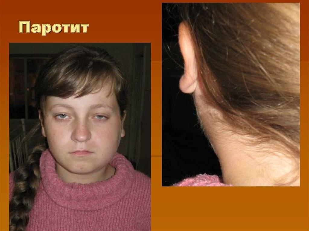 Синдром кавасаки у детей после covid-19. всё, что нужно знать | informburo.kz