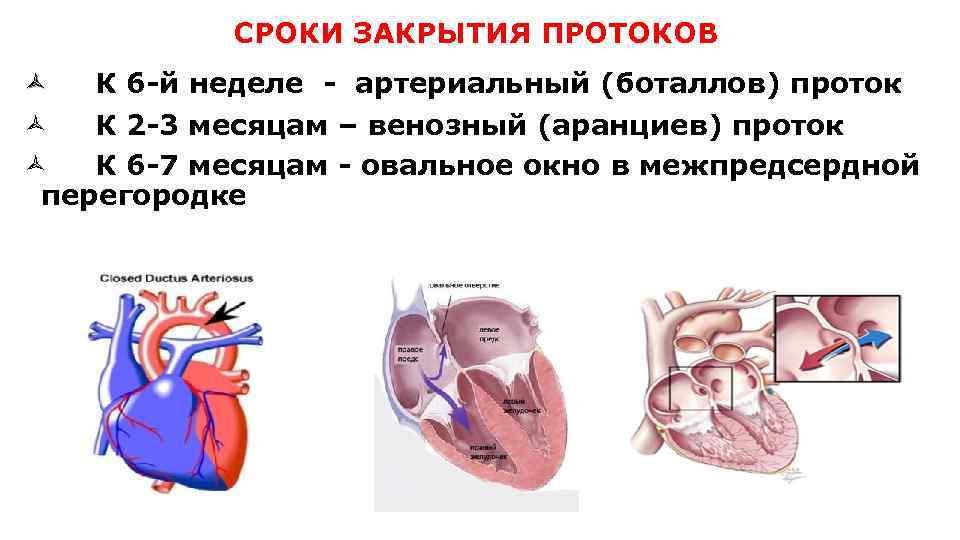 Открытое овальное окно в сердце у ребенка: почему не зарастает?
