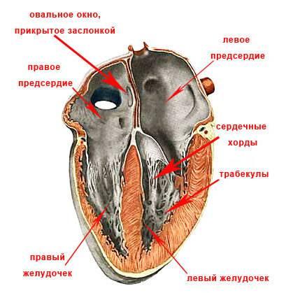 Эхокардиография при дефекте межжелудочковой перегородки
