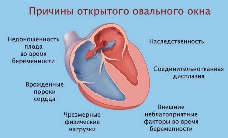 Вопросы-ответы | эндоваскулярное лечение врожденных пороков сердца в институте амосова