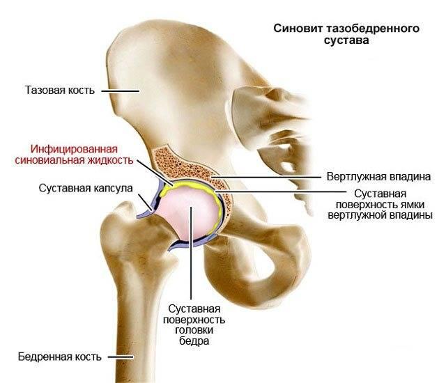 Болезнь пертеса - лечение, симптомы, причины, диагностика | центр дикуля