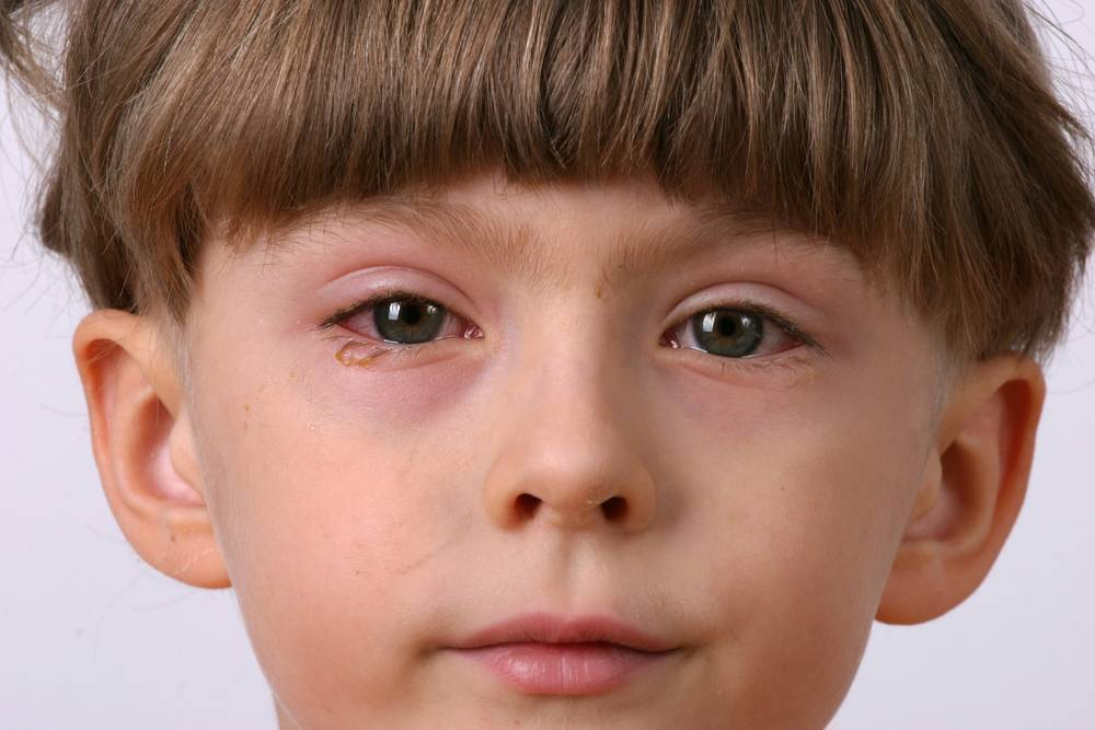 Аллергический конъюнктивит у детей - фото, лечение, причины и симптомы