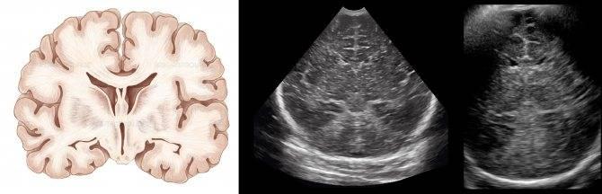 Узи головного мозга детям (нейросонография)