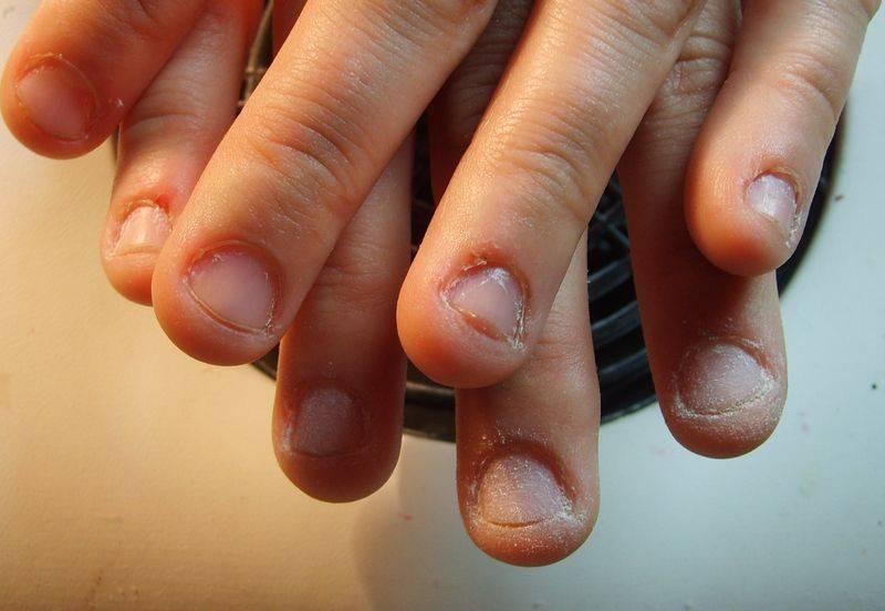 Ребенок грызет ногти - что делать, как отучить ребенка грызть ногти на руках   mamaschool