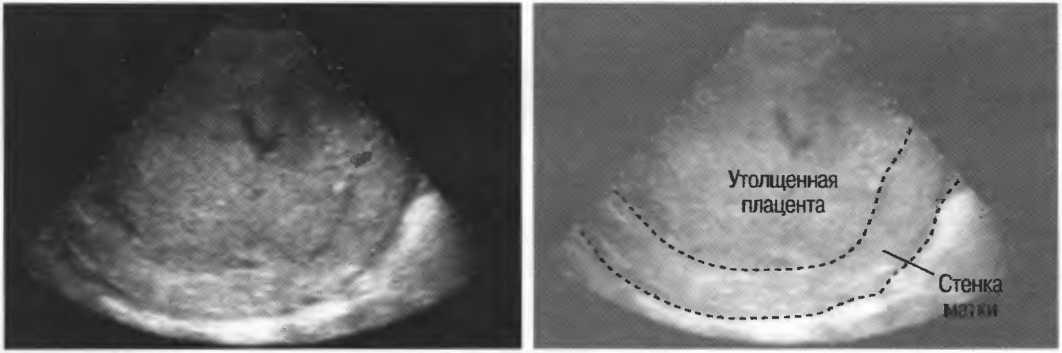 Гиперплазия плаценты при беременности