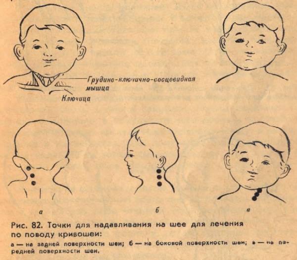 9 приёмов массажа при кривошее у ребёнка. правильная техника