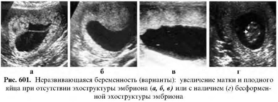 Замершая беременность: причины и лечение * клиника диана в санкт-петербурге