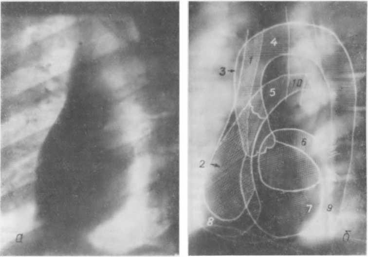 Основные причины и симптомы боли сердца. часто задаваемые вопросы о боли в сердце.