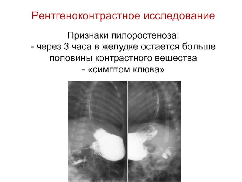 Диагностика и лечение цитомегаловирусной инфекции у беременных и новорожденных