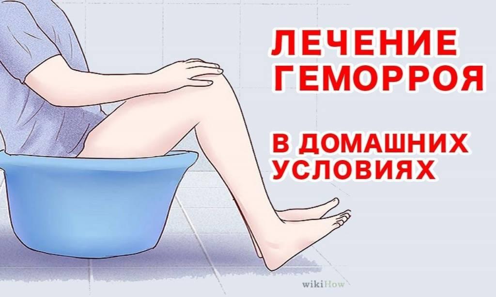 Геморрой и беременность | компетентно о здоровье на ilive