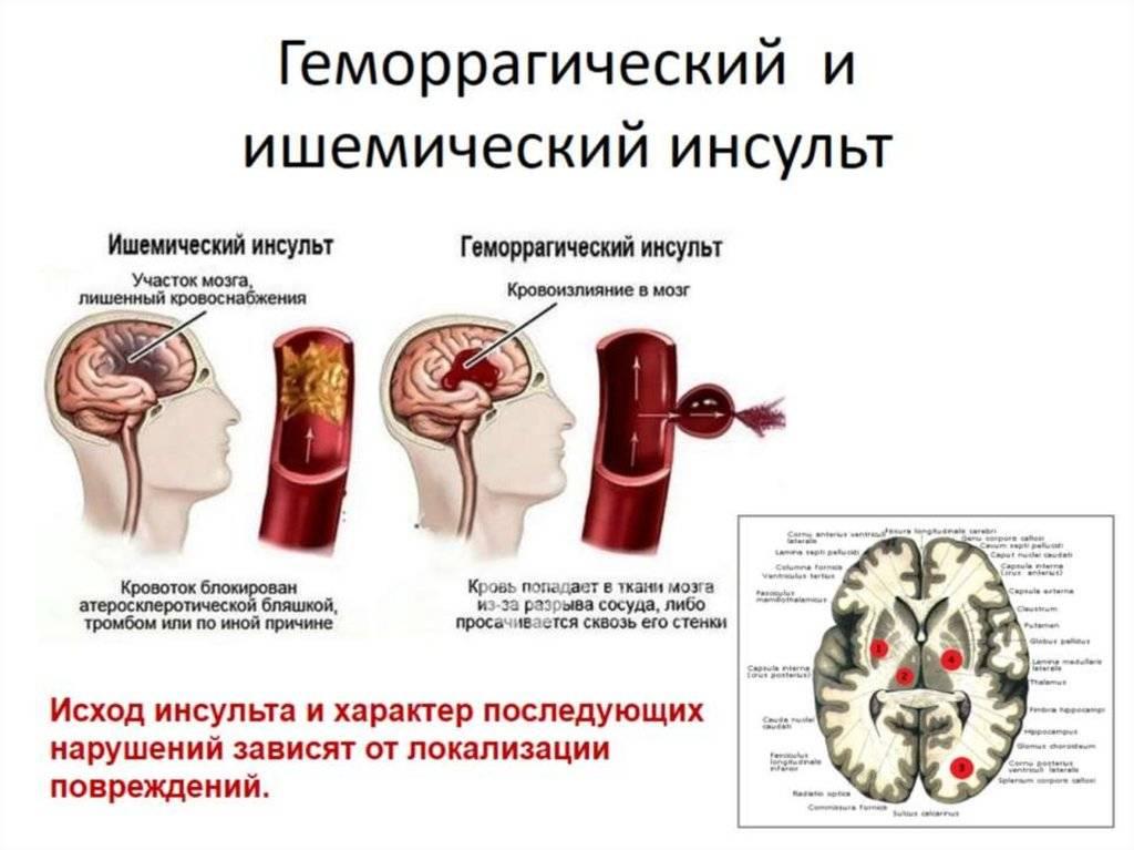 ⚕ геморрагический и ишемический инсульт ⏩ 【лечение】