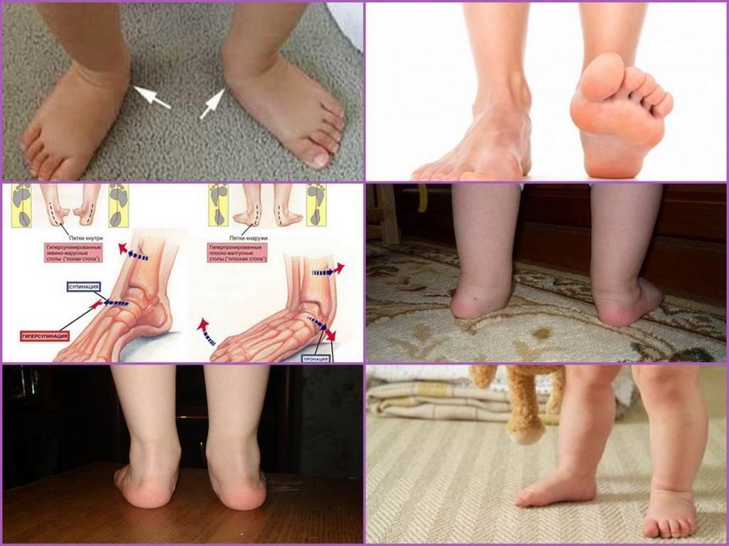 Выпрямление ног - исправление о-образной кривизны (варусной деформации) в москве