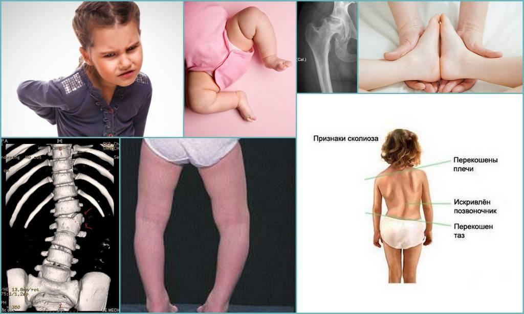 Дисплазия тазобедренных суставов у детей: как выявить и вылечить