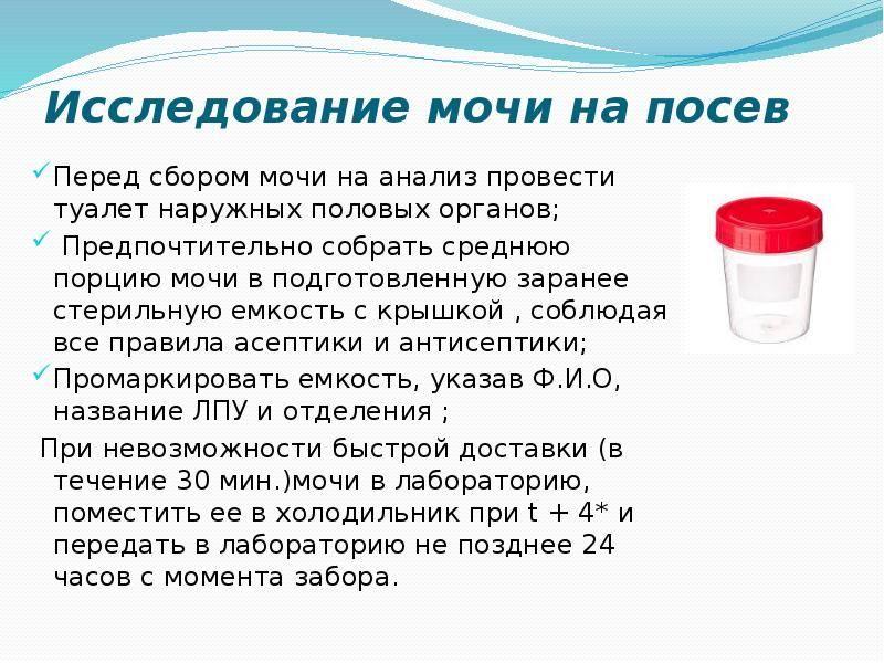 Подготовка к сдаче спермы для спермограммы