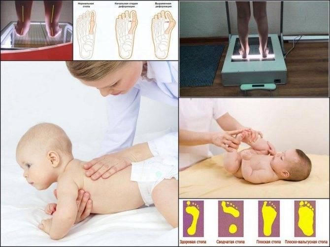 Лечение косолапости у детей с помощью лечебной гимнастики