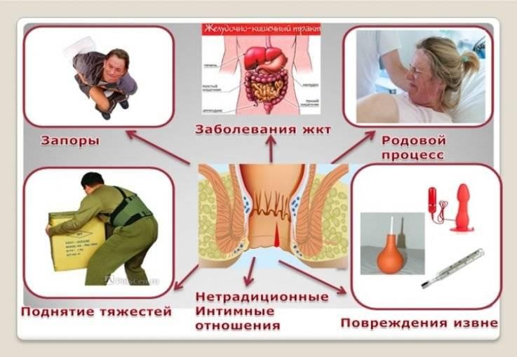 Симптомы геморроя на разных сроках беременности, лечение и профилактика
