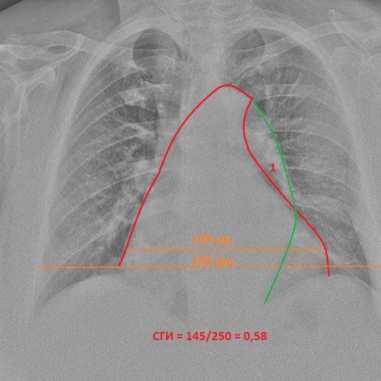 Рентгенография сердца: что показывает и как подготовиться?