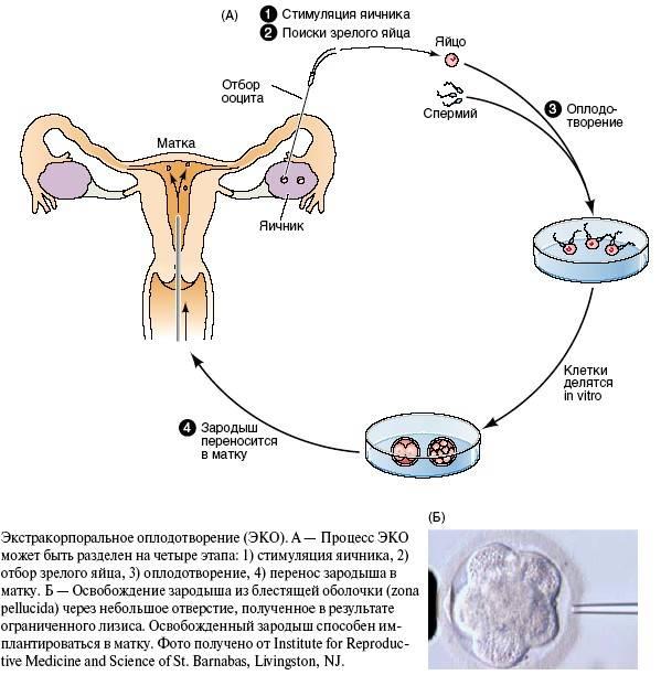 Синдром гиперстимуляции яичников (сгя) при эко