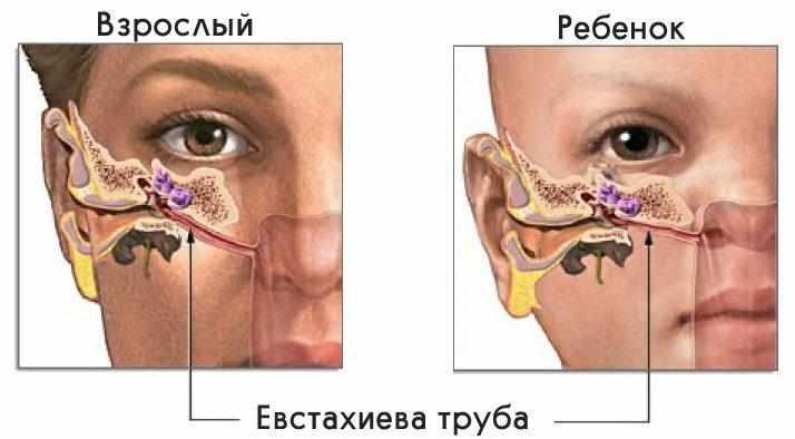 Острый отит: симптоматика, причины воспаления, лечение