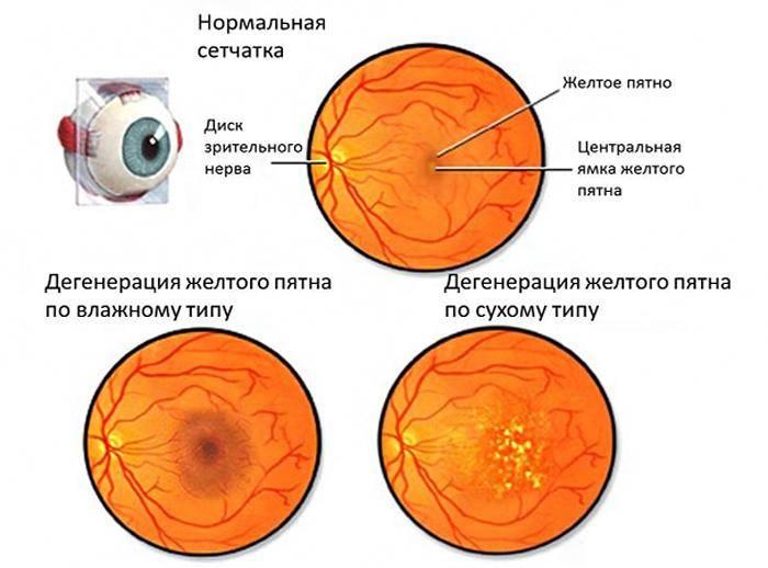 Фоновая ретинопатия: причины и лечение - энциклопедия ochkov.net