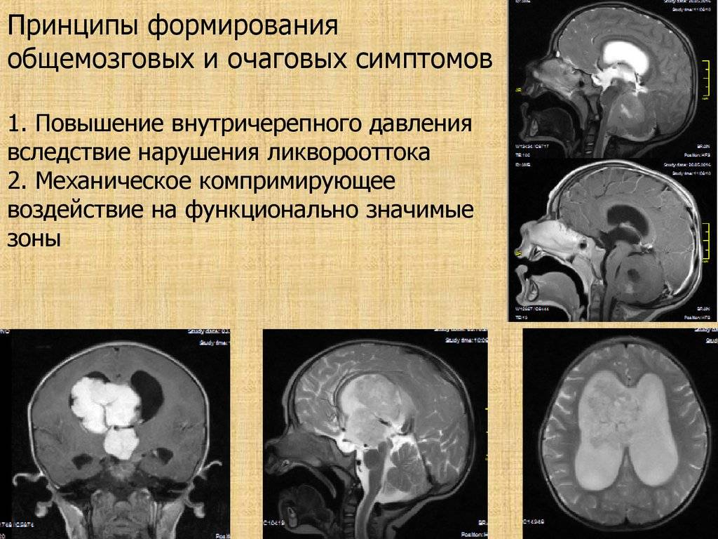 Рак мозга у детей