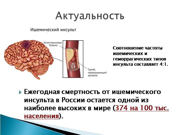 Психосоматика инсульта