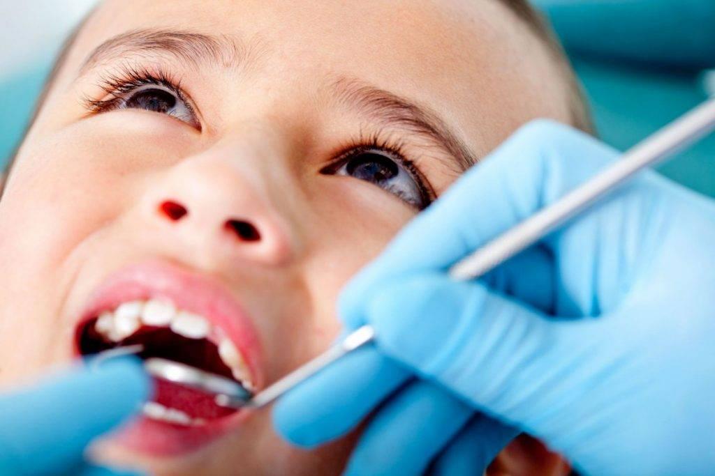 Лечение зубов у детей — методы и показания по лечению кариеса молочных зубов