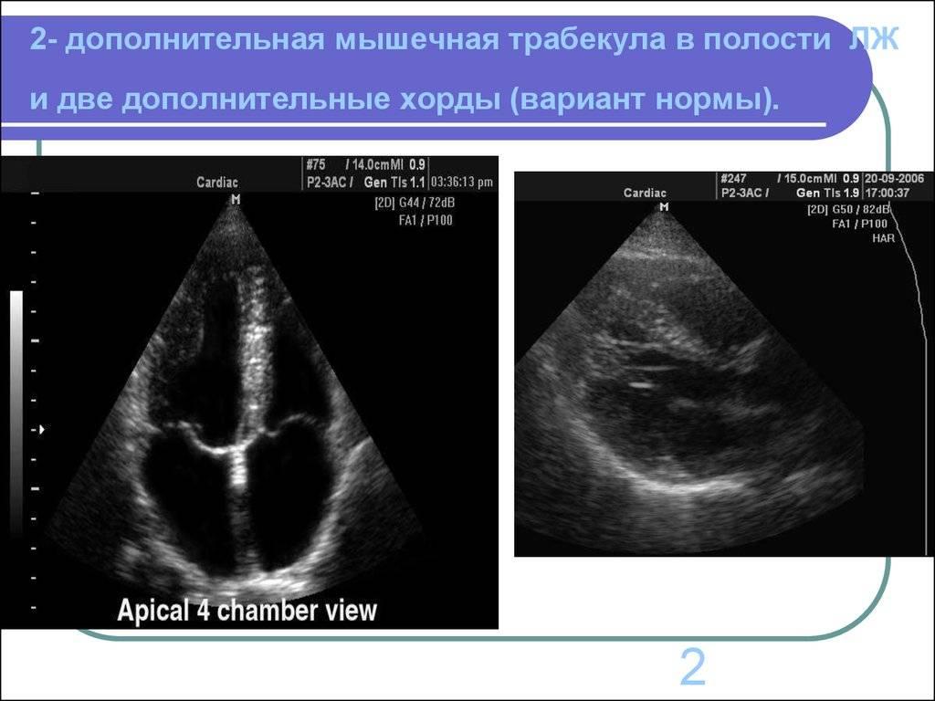 Эхокардиография сердца (эхо-кг, узи сердца). проведение, расшифровка, стоимость.