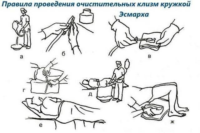 Как сделать клизму грудничку: особенности процедуры ~ факультетские клиники иркутского государственного медицинского университета