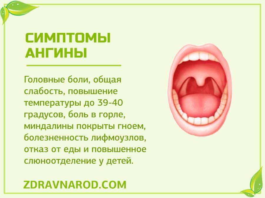 Острый и хронический тонзиллит у детей
