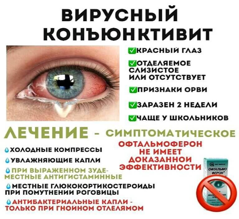 Бактериальный конъюнктивит: лечение у взрослых народными средствами - энциклопедия ochkov.net