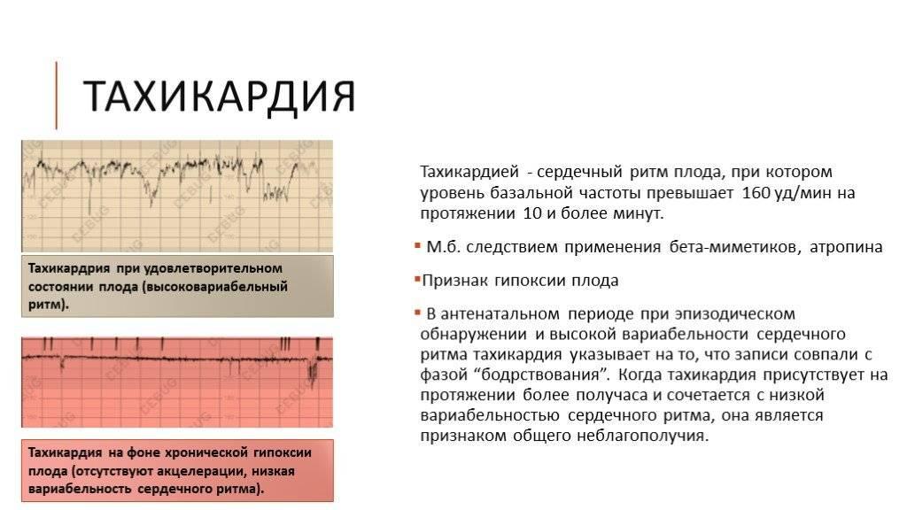 Сердцебиение плода - показатели нормы, методы контроля, патологии