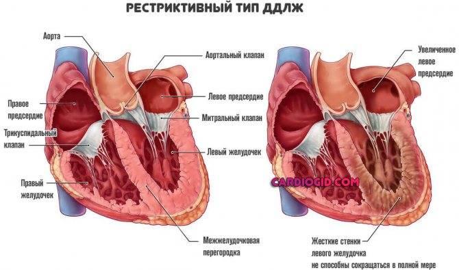 Двойное отхождение сосудов от правого желудочка