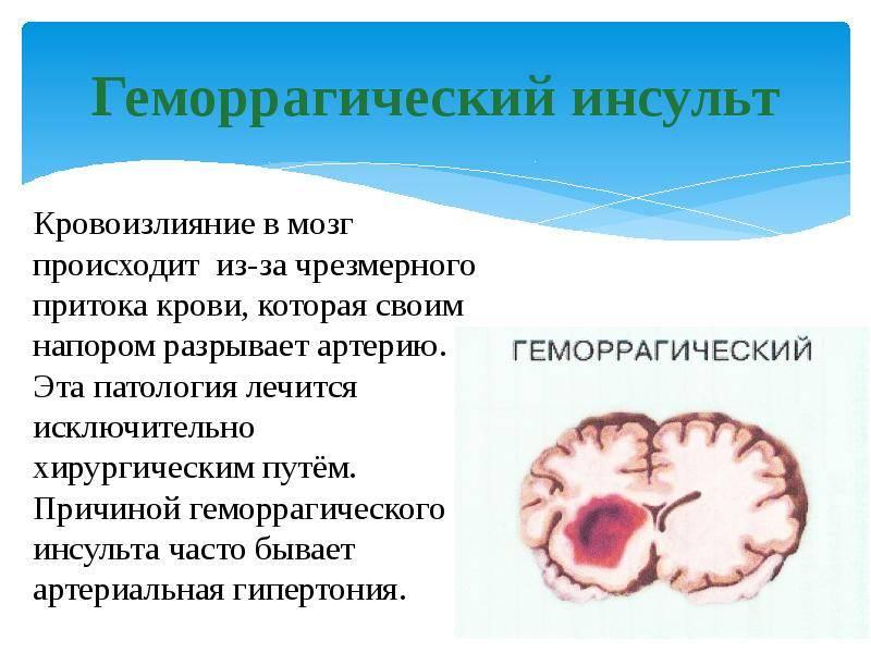 Как вылечить «болезни от нервов»: психосоматика и нарушения пищеварения