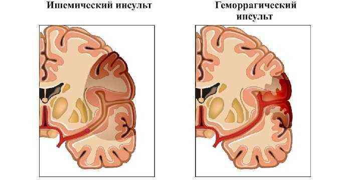 Инсульт - последствия, симптомы у женщин и мужчин, препараты   как распознать инсульт