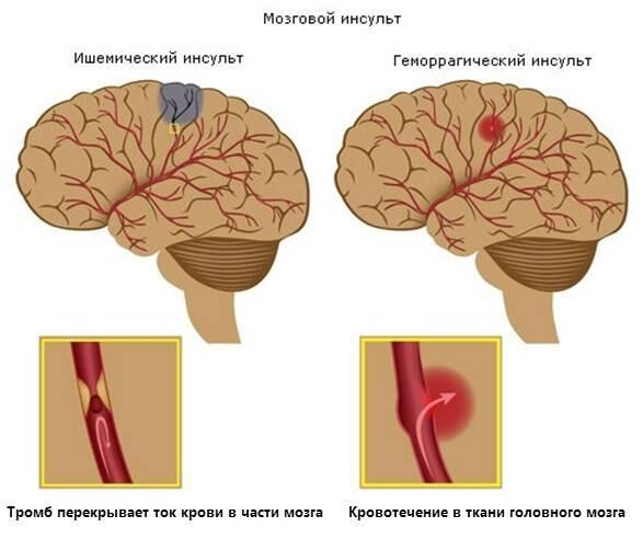 Психосоматика: виды  и причины заболеваний, лечение
