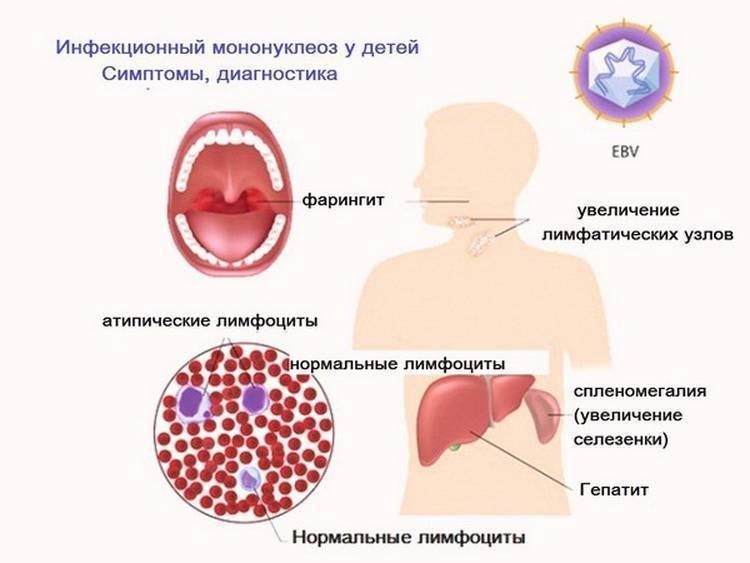 Энтеровирусная инфекция: причины, симптомы, лечение   энтеросгель