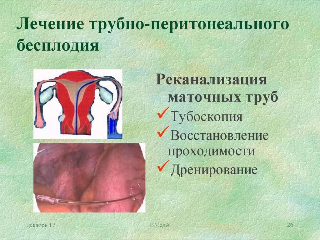 Шеечный фактор бесплодия: причины и диагностика