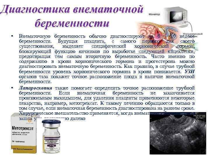 Внематочная беременность: причины, симптомы, как предупредить патологию