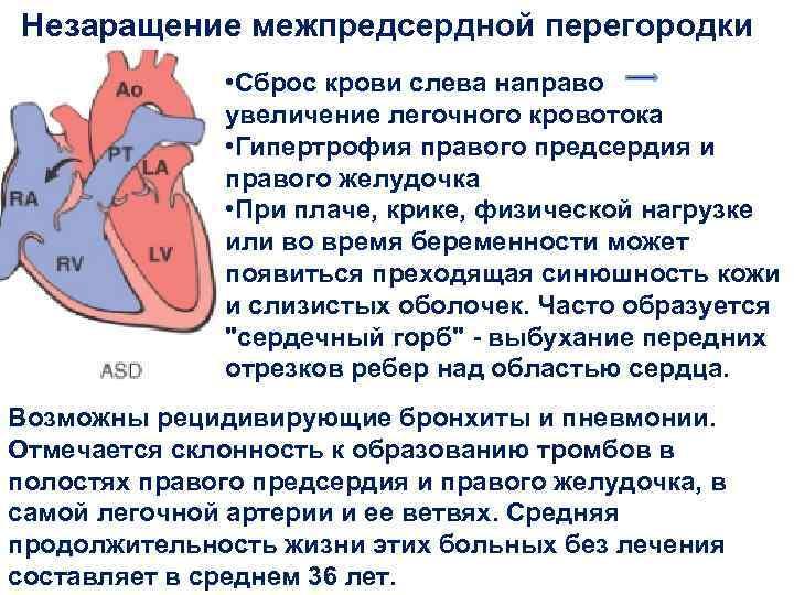 Стеноз легочной артерии | эндоваскулярное лечение врожденных пороков сердца в институте амосова