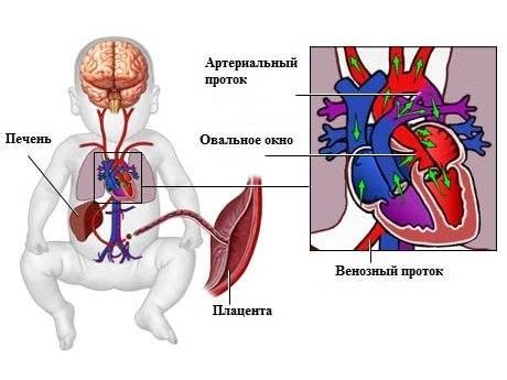 Врожденные пороки сердца. причины и лечение