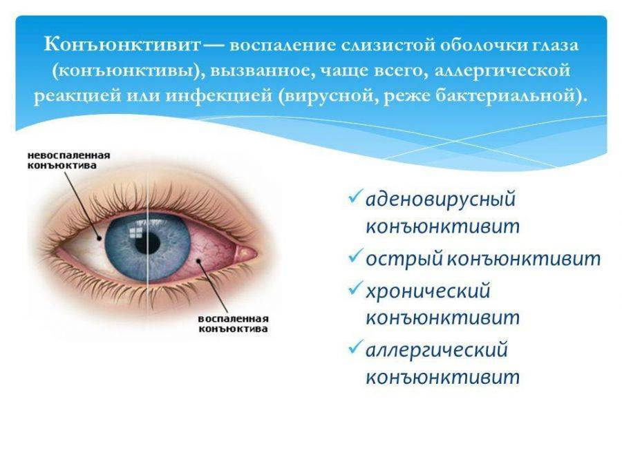 Конъюнктивит: лечение в домашних условиях у взрослых