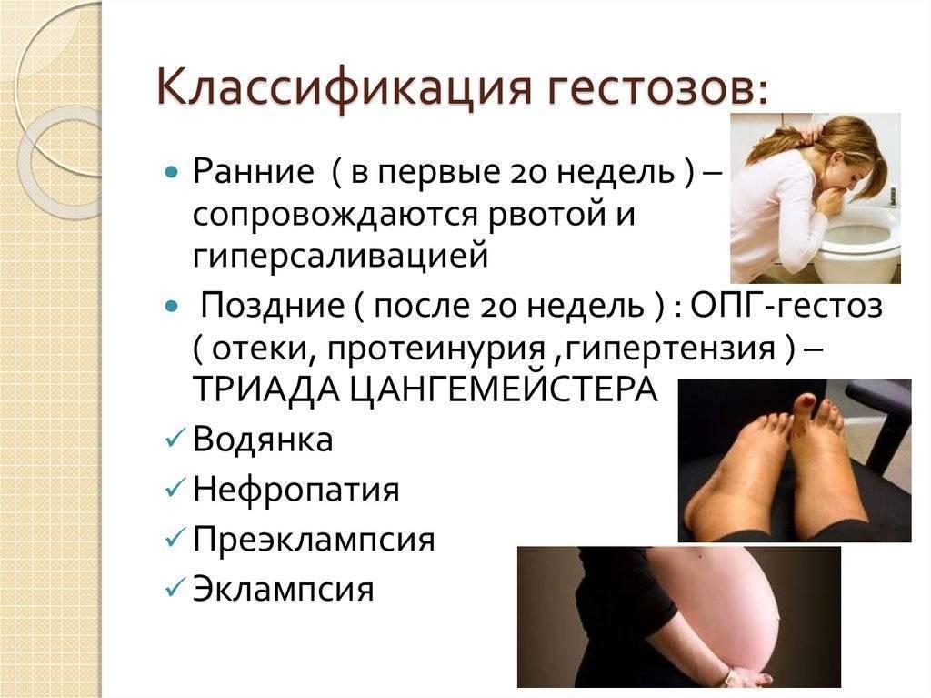 Гестоз: причины, симптомы, диагностика и лечение
