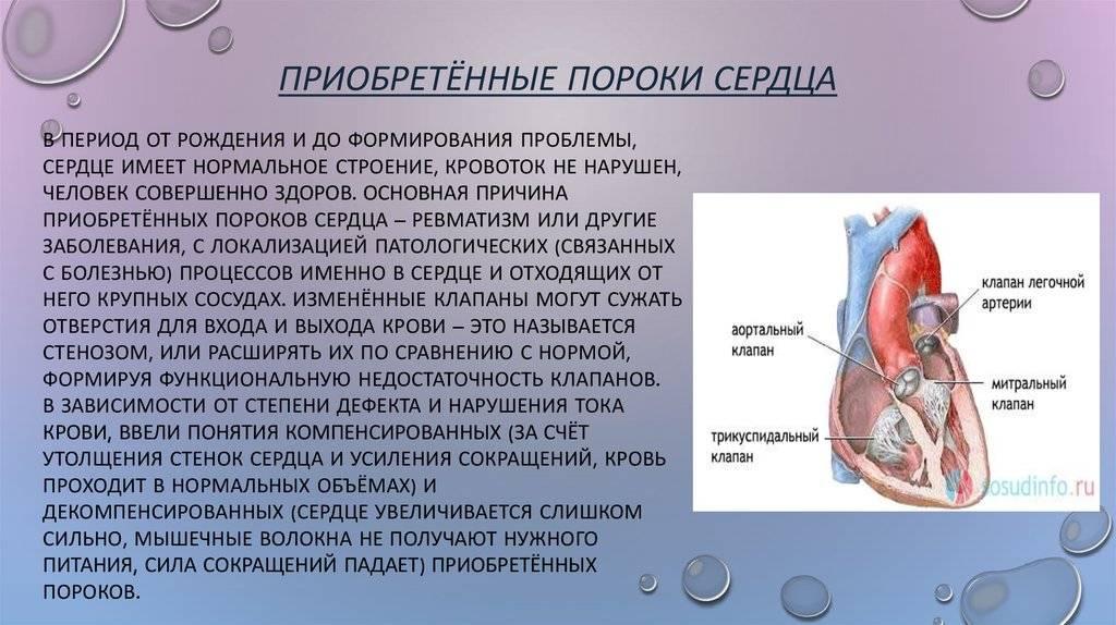 Эндоваскулярное лечение порока сердца