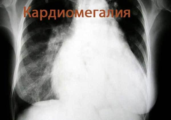 Что показывает рентген сердца, и когда необходимо прибегнуть к такой диагностике?